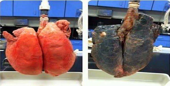A diferença real entre o pulmão de um fumante e de um não fumante