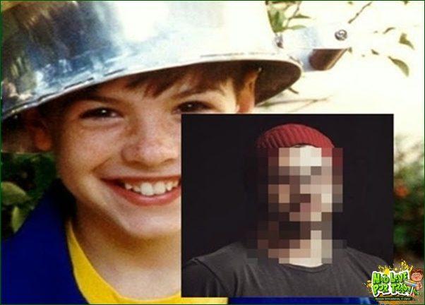 Antes e depois do menino maluquinho 1